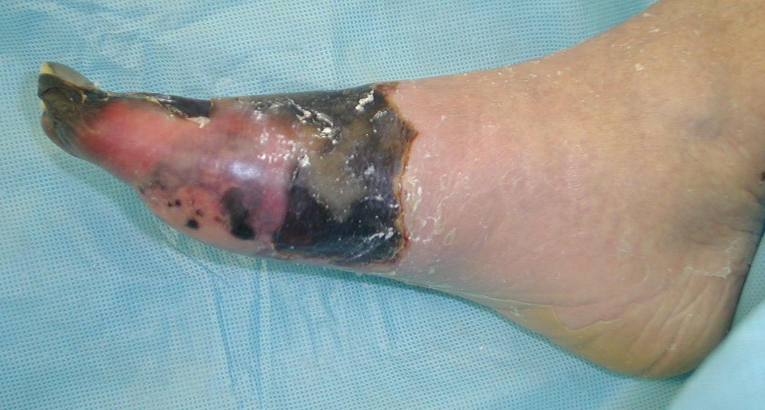 Signs Of Leg Gangrene 90