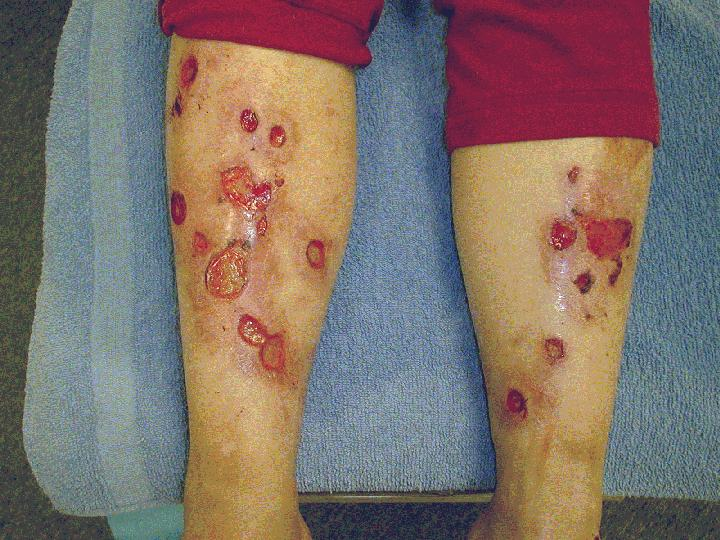 # How To Treat Diabetic Ulcers On Legs - Diabetes Doctor ...